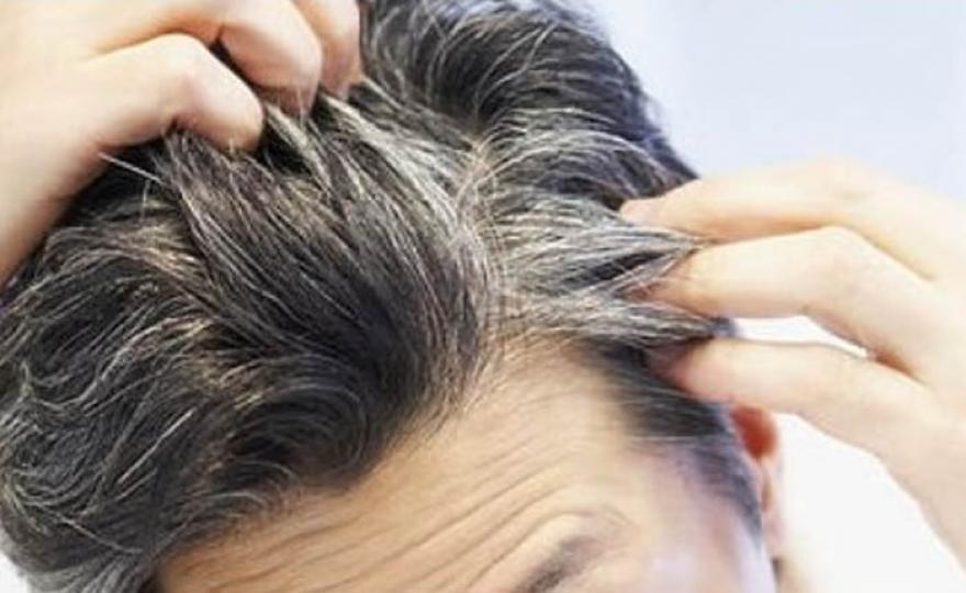 Image : Mengapa Rambut Sudah Beruban di Usia Muda?